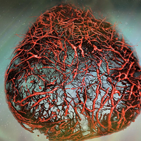 Blood Vessels Grown in a Petri Dish Closely Resemble Human Ones