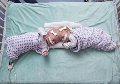 Image of the Day: Conjoined and Separated