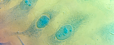 HeLa Cells from Different Labs Vary in Genetics, Phenotype