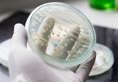 Yeast Engineered to Make Cannabinoids