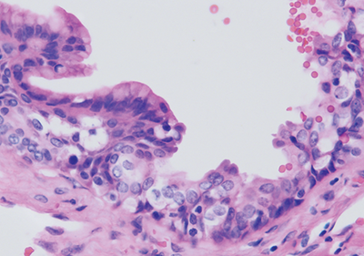 Stray Germ Cells May Seed Female-Biased Cancerous Cysts
