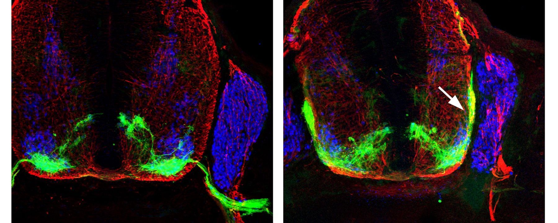 Image of the Day: Neuron Guides