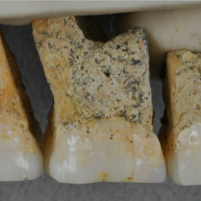 New Species of Human, <em>Homo</em> <em>luzonensis,</em> Identified in the Philippines