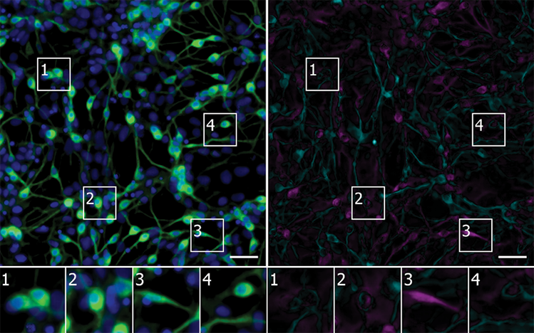 Artificial Intelligence Sees More in Microscopy than Humans