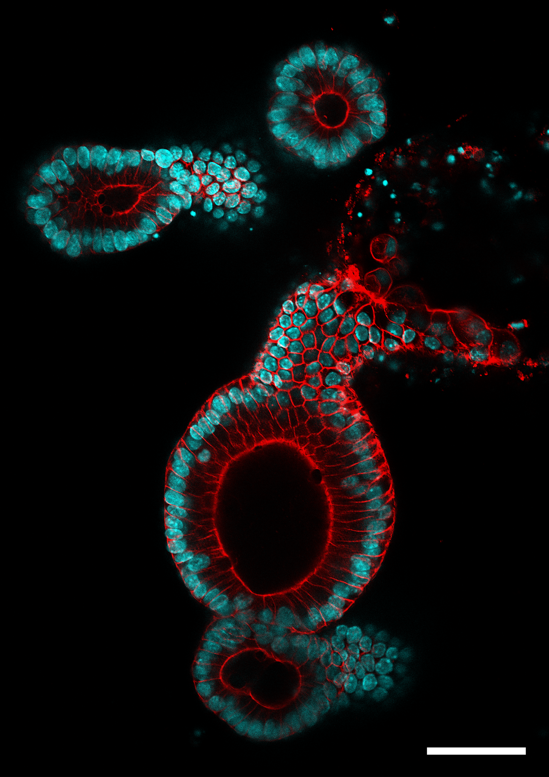 Image Of The Day Colorful Colonoids The Scientist Magazine