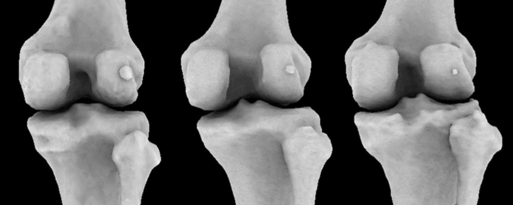 Tiny Knee Bone, Once Lost in Humans, Is Making a Comeback