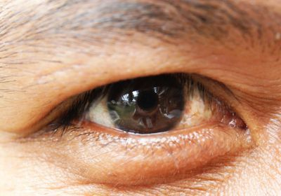 Donor-Derived iPS Cells Show Promise for Treating Eye Disease