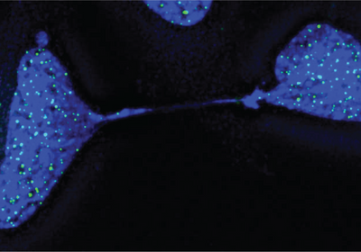 Image of the Day: Sticky Telomeres