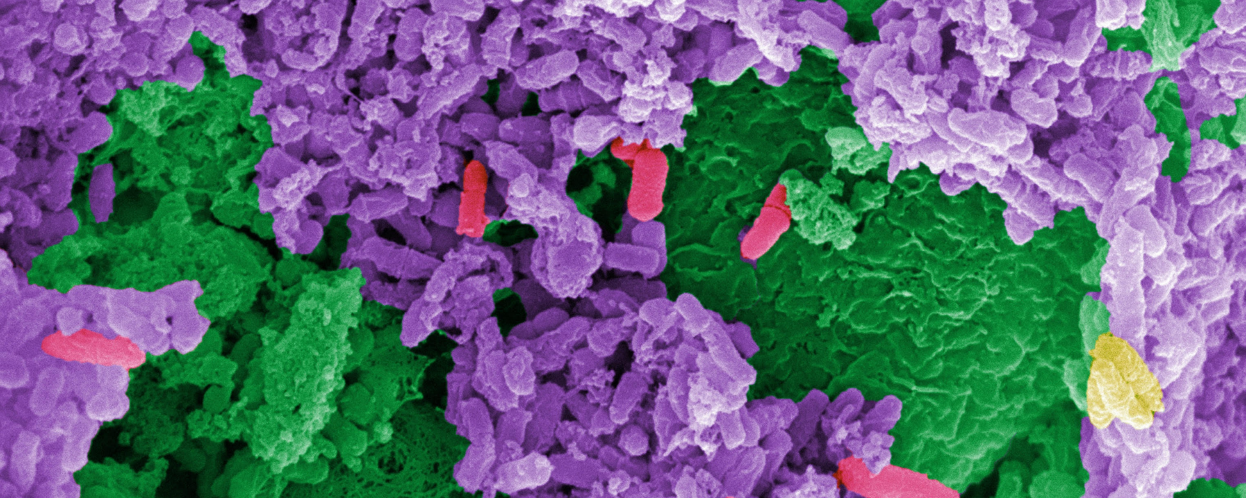 Three Studies Track People's Microbiomes Through Health and Disease