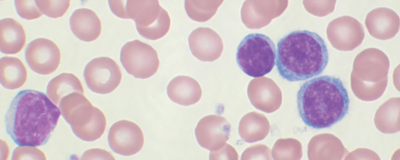 T Cell Proliferation Linked to CAR T Responses