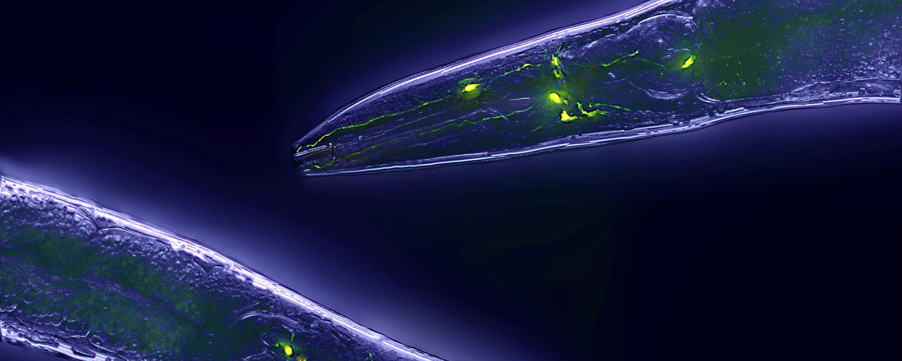 <em>C. elegans&nbsp;</em>Healthier Without Longevity Gene
