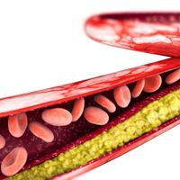 Gene Mutation Could Explain Humans' High Risk of Heart Attack
