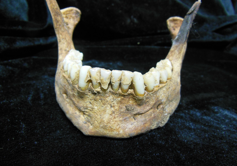Caution Urged for Comparing Ancient and Modern Humans' Oral Microbes