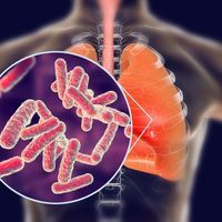 First New Tuberculosis Drug Approved in 50 Years