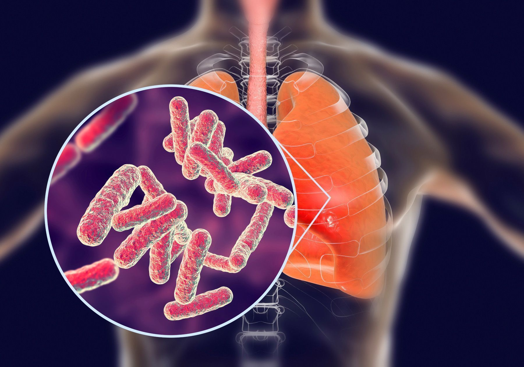 FDA Approves New Drug to Help Fight Treatment-Resistant Tuberculosis