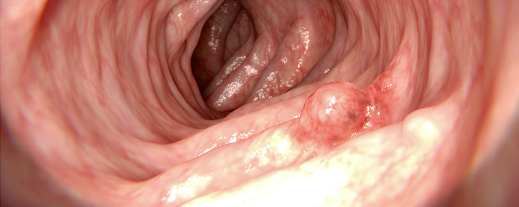 There's a Troubling Rise in Colorectal Cancer Among Young Adults