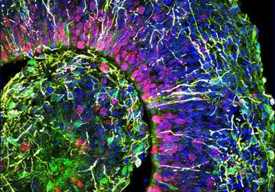 Human Cortical Organoids Model Neuronal Networks