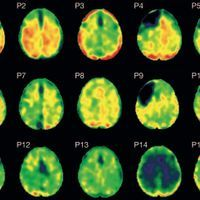 Tau Pathology Present Decades After a Single Brain Injury