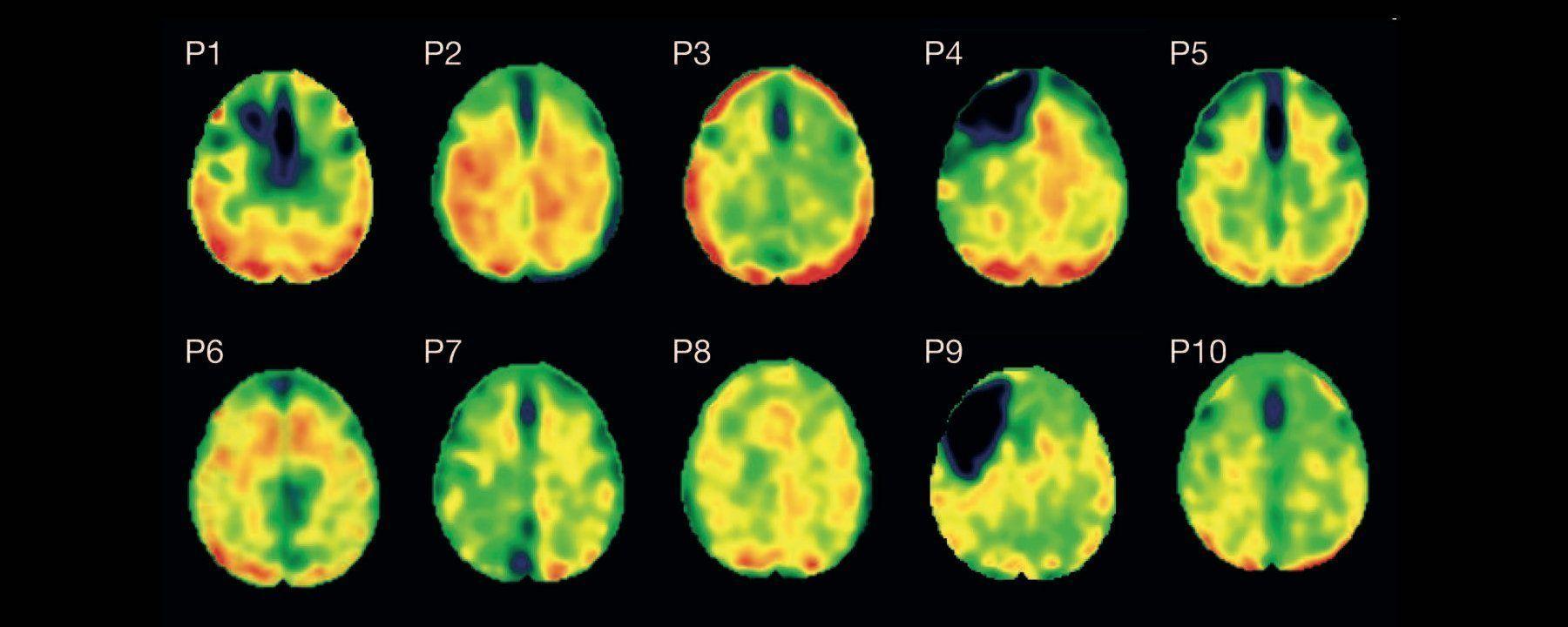 Tau Pathology Present Decades After a Single Brain Injury