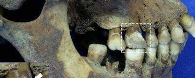 Image of the Day: Famine Victim Teeth