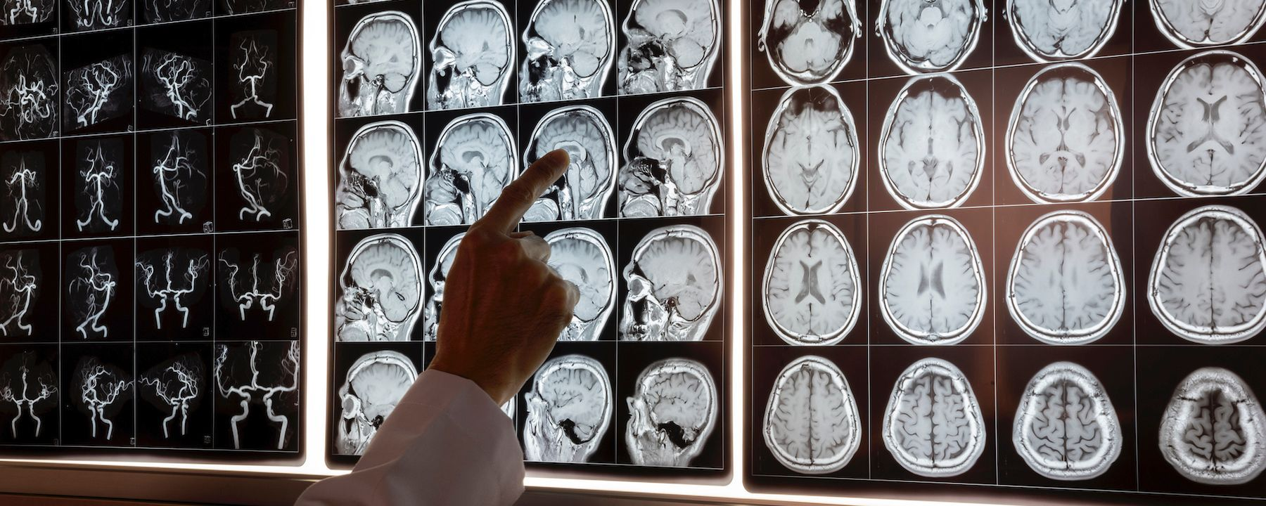 Biogen, Eisai End Two Late-Stage Trials for Alzheimer's Treatment