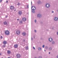 Gut Microbe Linked to Nonalcoholic Fatty Liver Disease
