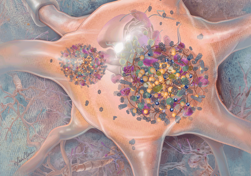 Is It Time to Rethink Parkinson's Pathology?