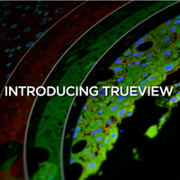 TrueVIEW™ Autofluorescence Quenching Kit – See True Signal