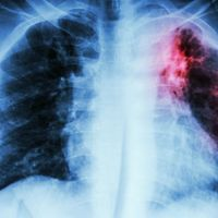 Triage Test for Tuberculosis Spots Infections Within an Hour