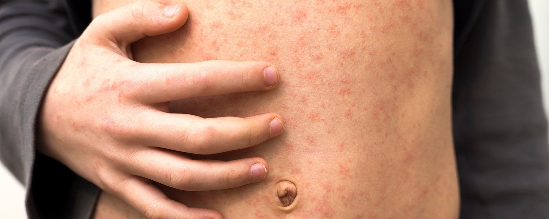 Measles Leaves the Immune System Vulnerable to Other Diseases