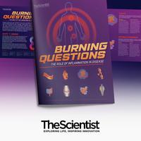 燃烧问题:炎症在疾病中的作用