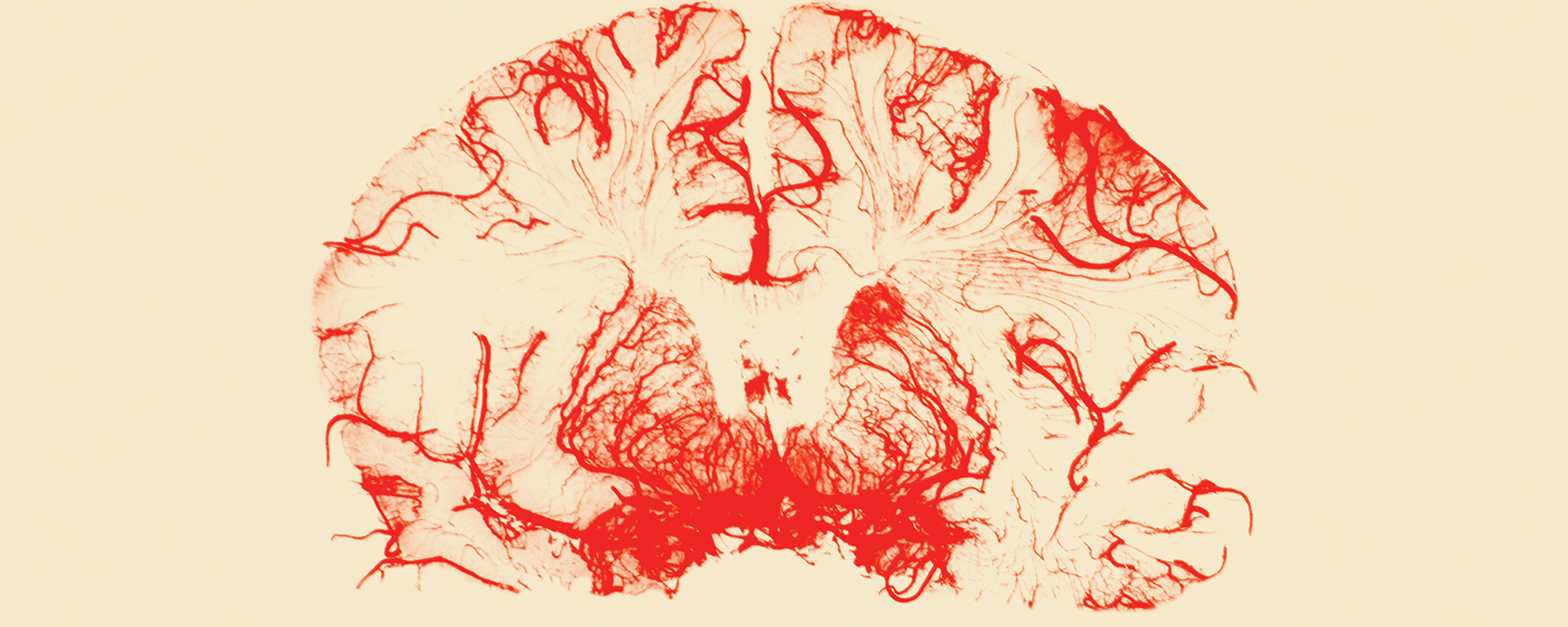 The Hunt for a Blood Test for Alzheimer's Disease