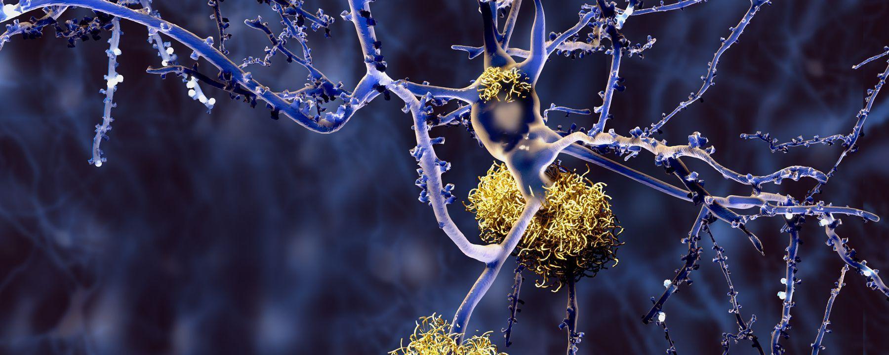 Biogen Presents Data on Efficacy of Alzheimer's Drug