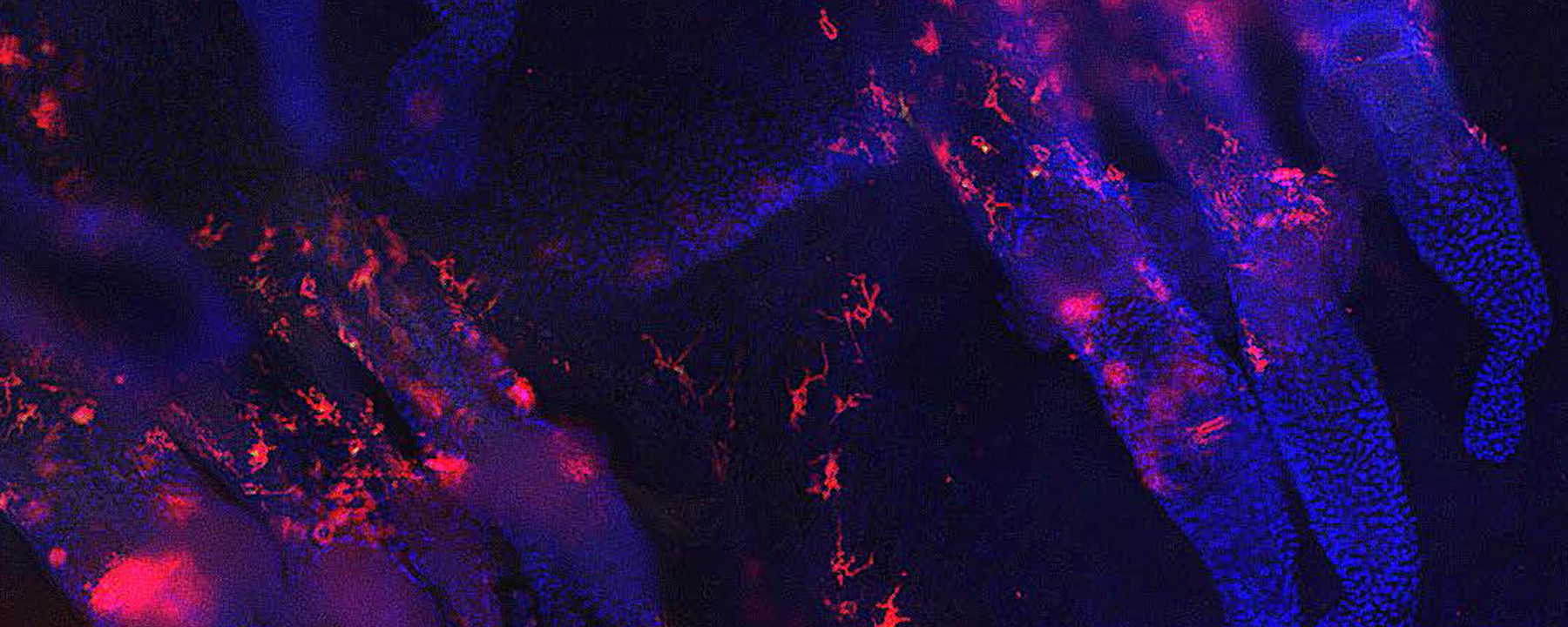 Image of the Day: Inflamed Mouse Follicles