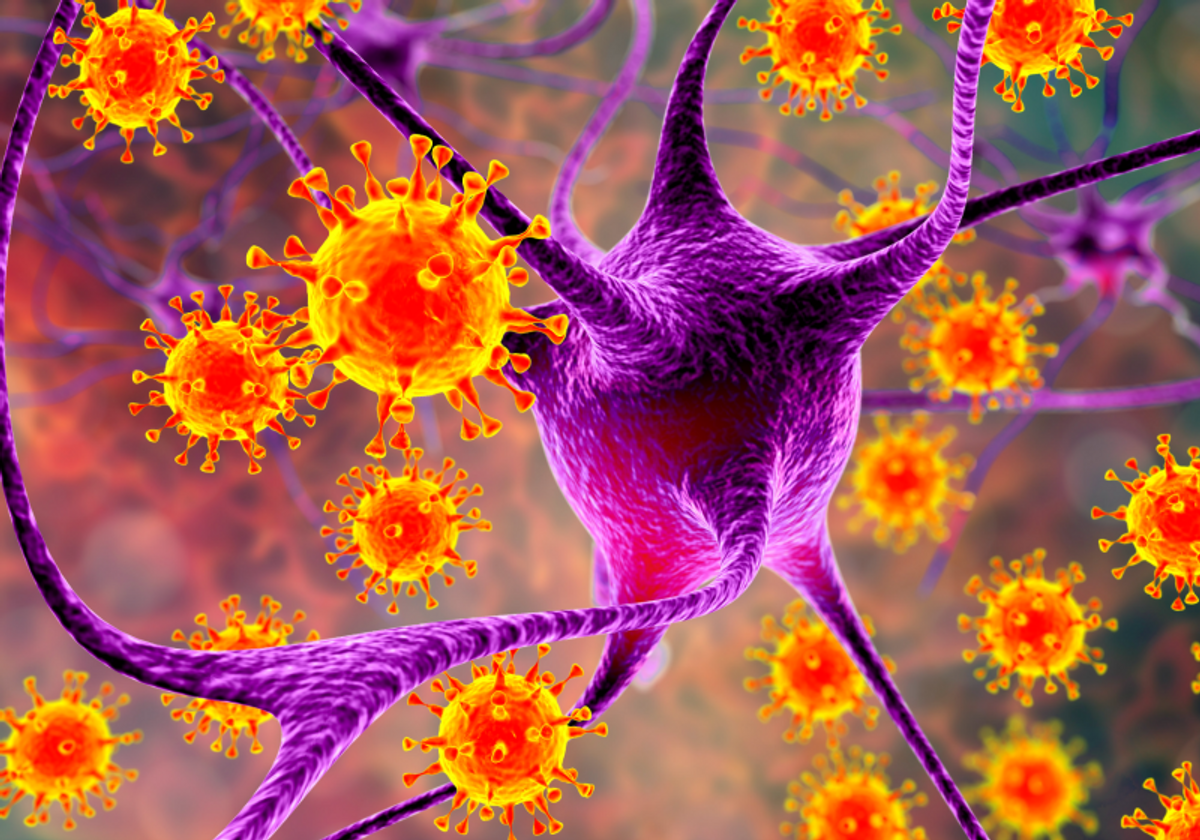 Type Of Herpes Virus Tied To Multiple Sclerosis The Scientist Magazine