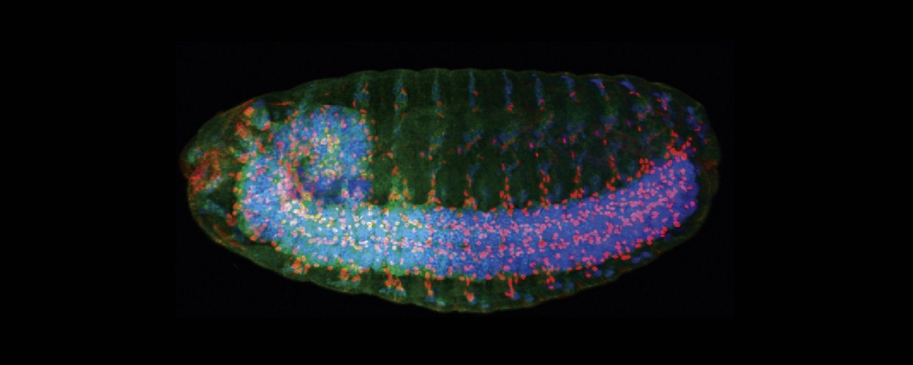 Image of the Day: Neural Branching Gene