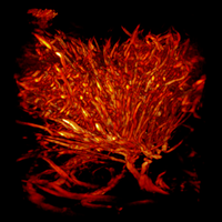 Image of the Day: Tumor Vasculature