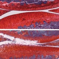 Image of the Day: Reversing Arthritis