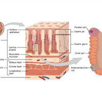 New Report Counters Claims on the Origin of Gastric Cancer