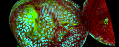 Image of the Day: Stomach Stem Cells