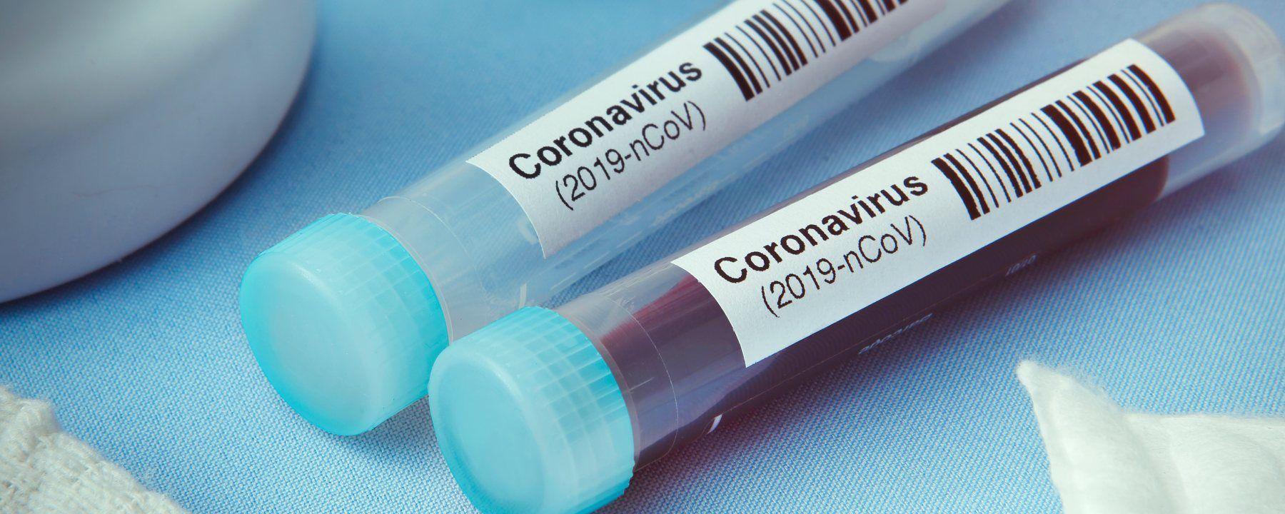 The Latest Drug Trials for Coronavirus