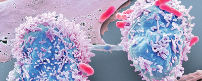 Bacteria as Living Microrobots to Fight Cancer