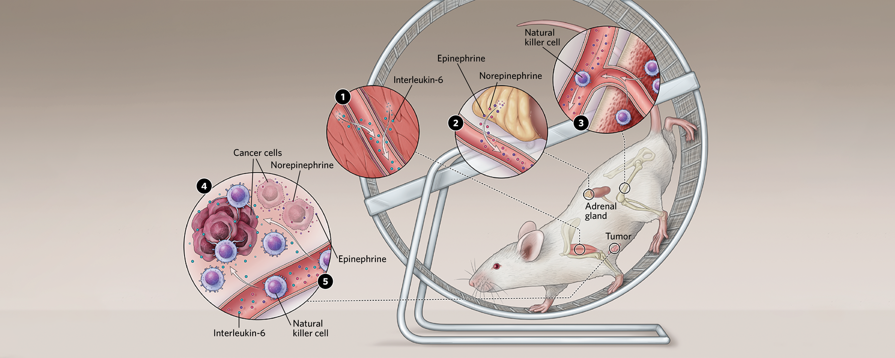 Infographic: Exercise's Anticancer Mechanisms