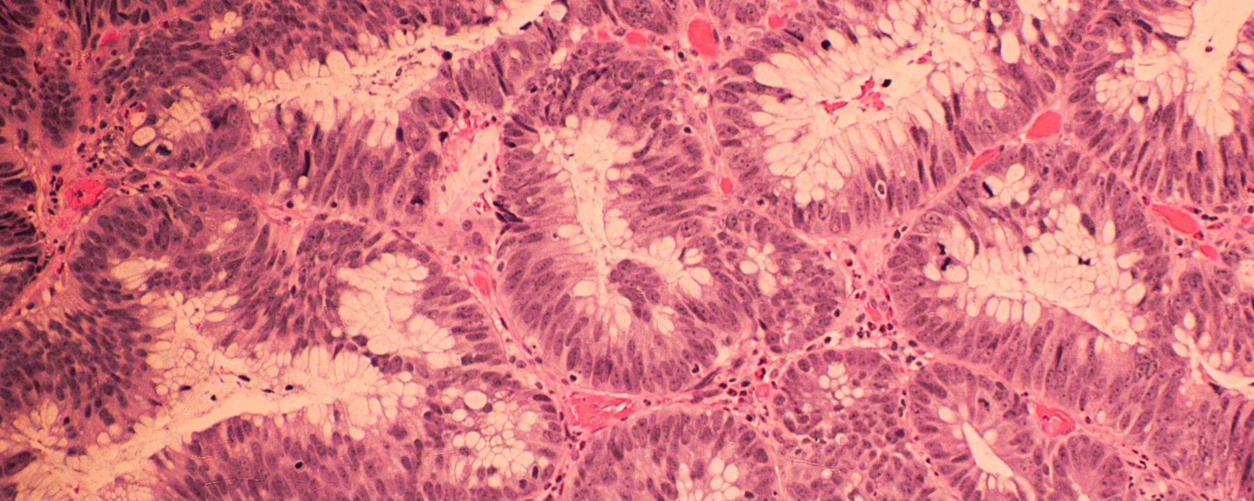 Colon Cancer Uses a Regenerative Playbook to Metastasize