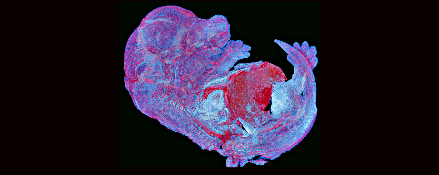 Image of the Day: A Mouse Brain Slice Becomes Art