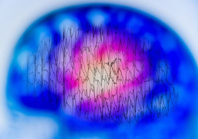 Artificial Intelligence Decodes Speech from Brain Activity: Study