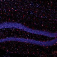 How Immune Cells Make the Brain Forget