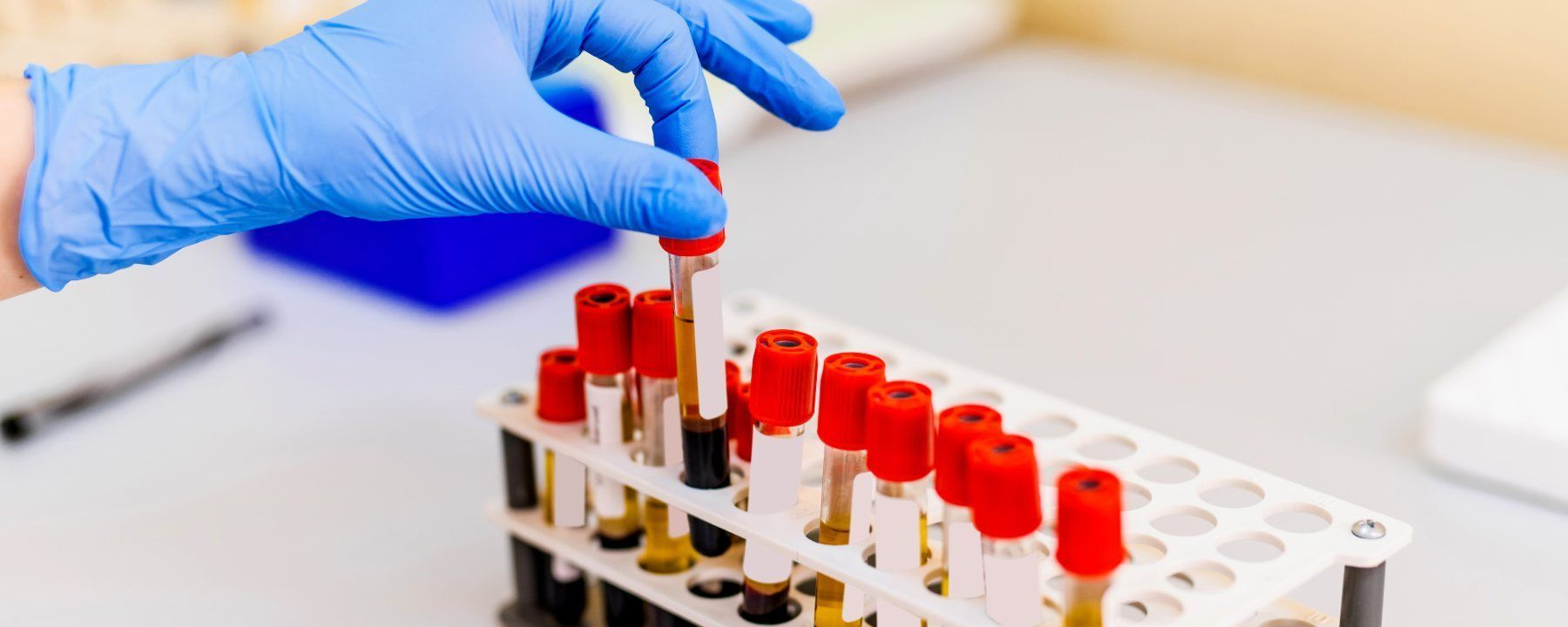 Blood Test Detects Cancer Early, But Has Some Holdups