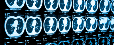 AI Learns from Lung CT Scans to Diagnose COVID-19