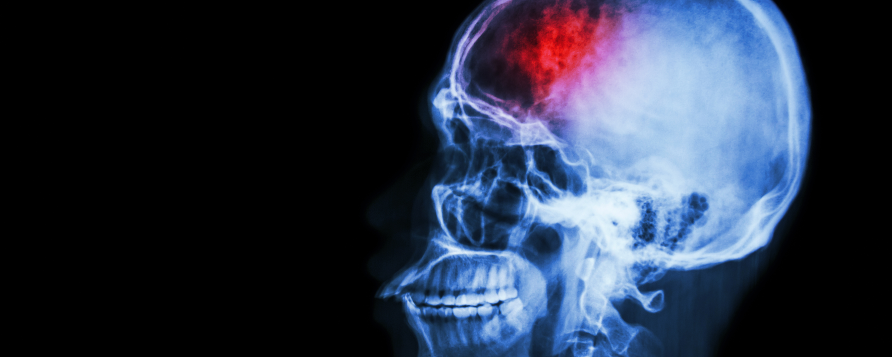 Dozens More Cases of Neurological Problems in COVID-19 Reported